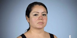 Obudziła się z bandażami na twarzy. Chirurg upiększył ją wbrew jej woli