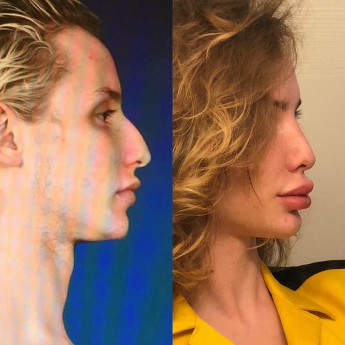 Pre i posle - razlika je ogromna