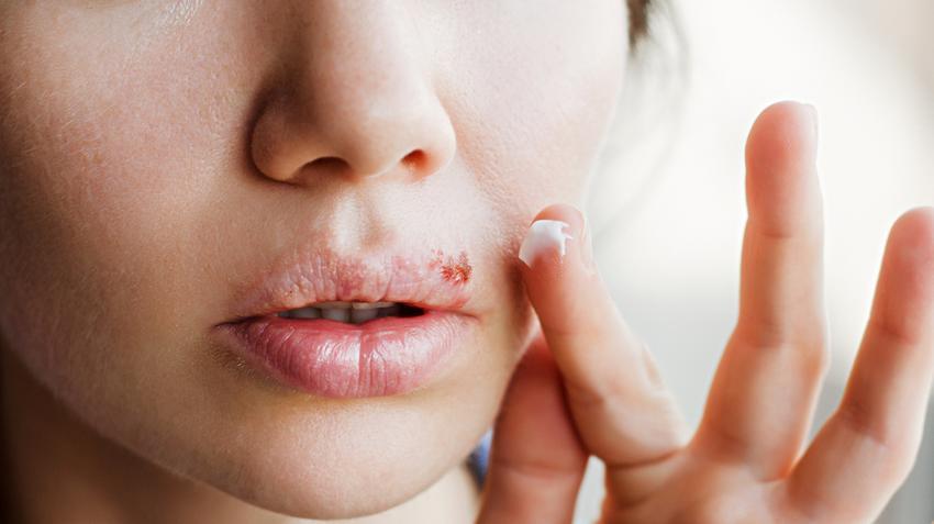hogyan lehet eltávolítani a vörös foltokat a herpesz után