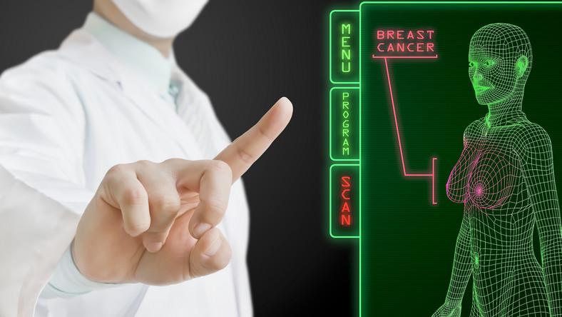 Pacjentki po chemioterapii częściej chorują na cukrzycę
