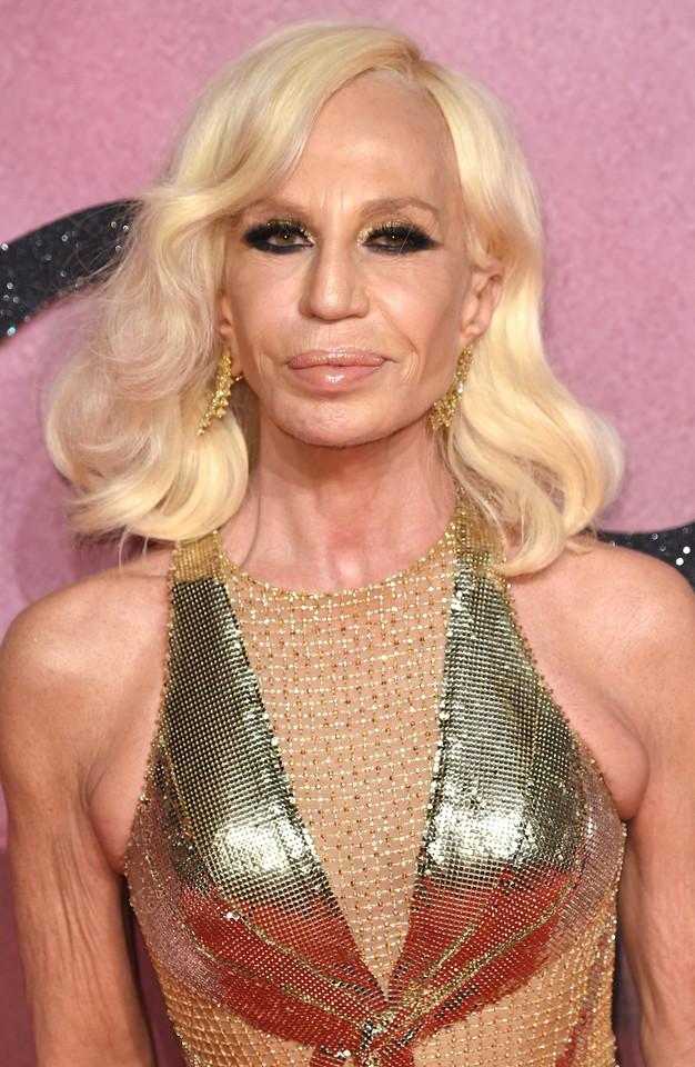 Ofiary operacji plastycznych: Donatella Versace