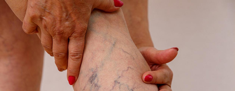 Visszér fájdalom csillapítása   BENU Gyógyszertárak - Enyhíti a fájdalmat a visszeres lábakon