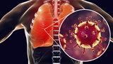 Koronawirus dokucza jeszcze po chorobie. Czym objawia się postCOVID, czym długi COVID? Na co zwracać uwagę i co z tym robić?