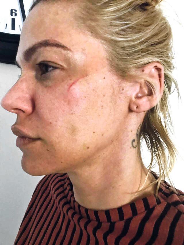 """Nataša Bekvalac prijavila je nasilje i posle svega nastavila da se bori za prava žena pod sloganom """"Nisi sama"""""""