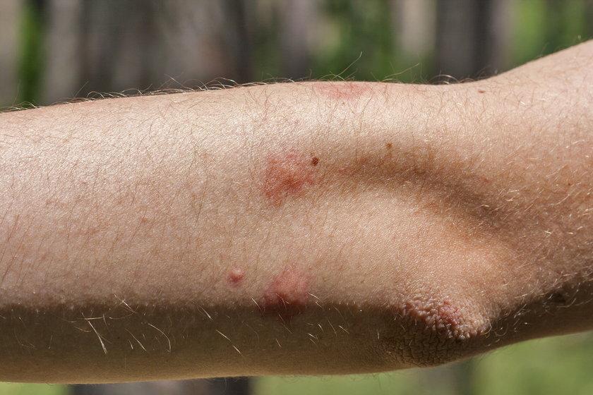 Komary powodują bolesne ukąszenia, które swędzą. Warto zastosować któryś z domowych sposobów, by się przed nimi bronić