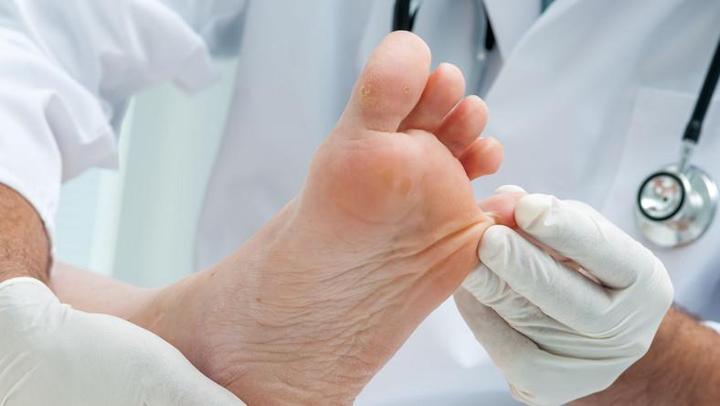 Lekarz ogląda paznokcie u stóp