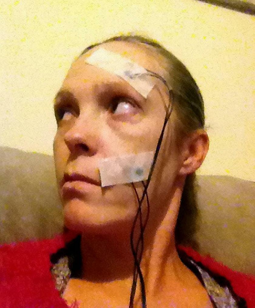 Po ukąszeniu kleszcza kobiecie sparaliżowało twarz