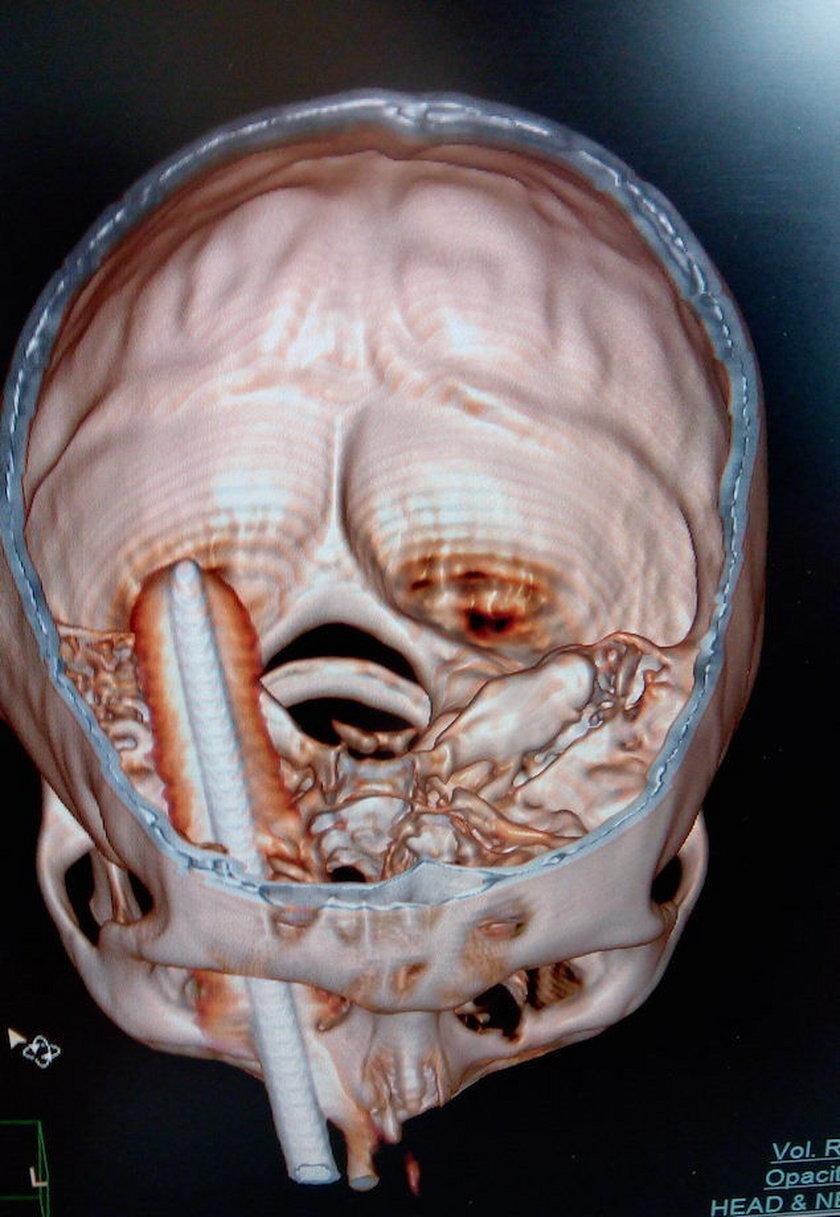 30-centymetrowy pręt wbił się w głowę mężczyzny