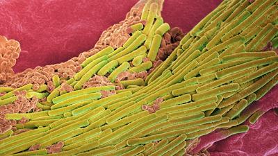 Pocovidowa biegunka może zabić. Nadużywanie antybiotyków otworzyło drogę groźnej bakterii