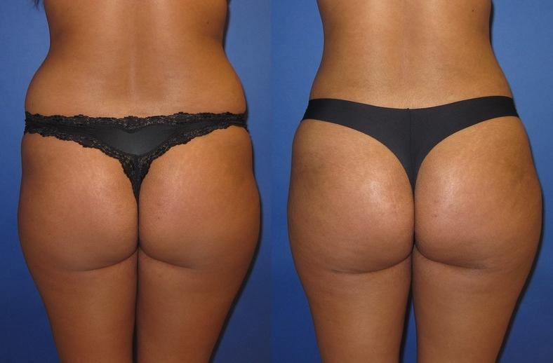 Here are the results of a subtle Brazilian Bum Lift.jpg