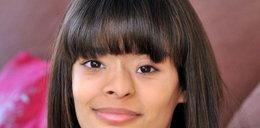 19-latka z nowotworem w nosie. Myślała, że to kosmetyki