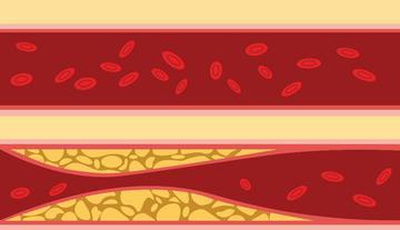 mi a magas vérnyomás 3 szakasza