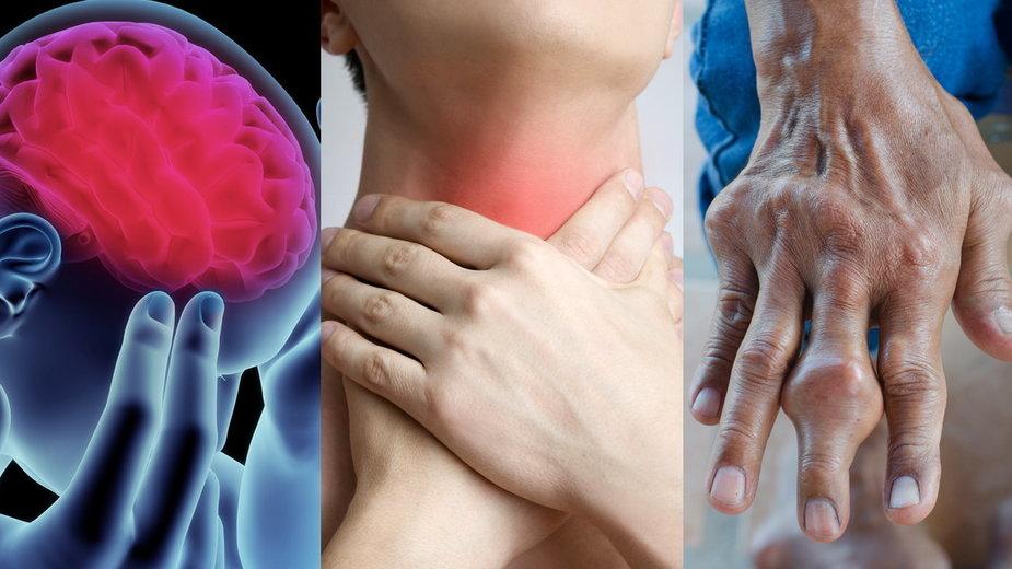 dotychczas naukowcy wyróżnili ponad 60 chorób spowodowanych nadużywaniem alkoholu