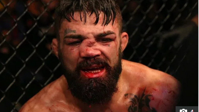 Mike Perry suffered a horrific nose injury in a loss to Vicente Luque                   Credit: Getty - Contributor
