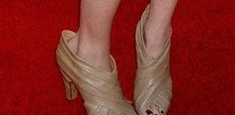 Tak może skończyć się noszenie źle dobranych butów