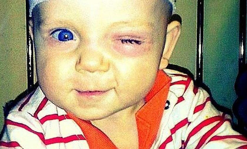 Szymonek może stracić oczko. Potrzebuje pomocy!