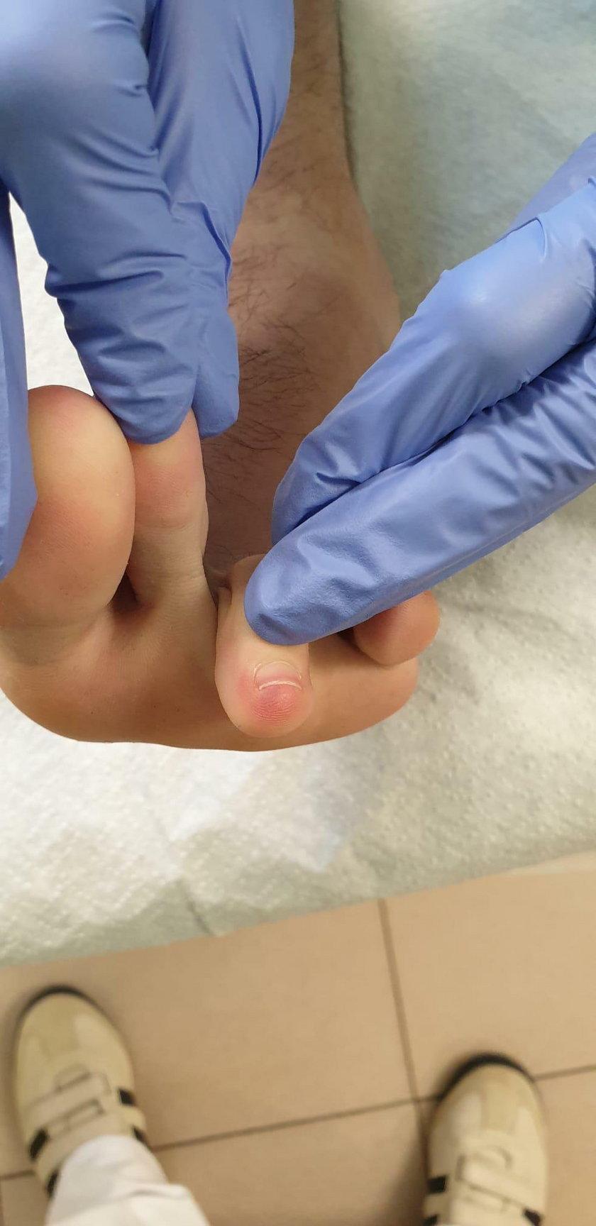 Koronawirus: siniaki na stopach mogą świadczyć o zakażeniu
