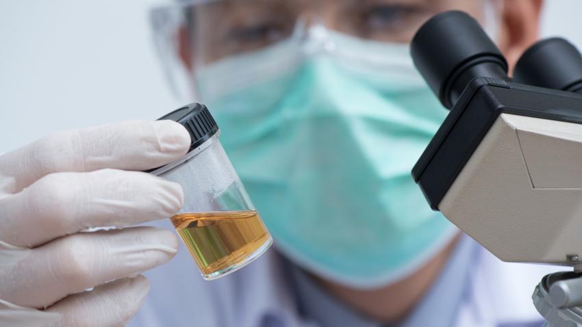 papilloma vírus vizelet stádiumú papillomavírus-kezelés