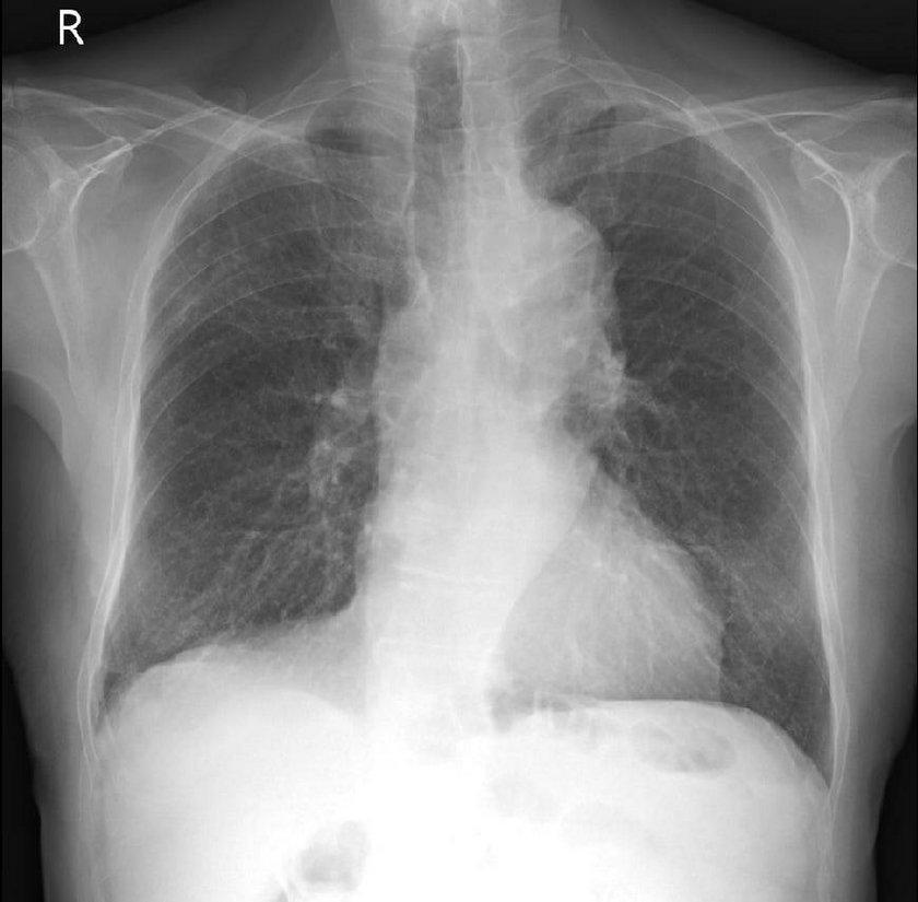 Koronawirus niszczy płuca. Dr Tomasz Rezydent o skutkach choroby