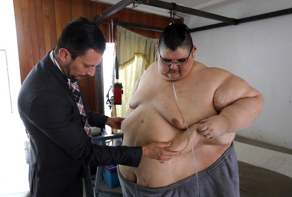 A világ legkövérebb embere le akar fogyni - Noizz, A világ legsúlyosabb fogyása
