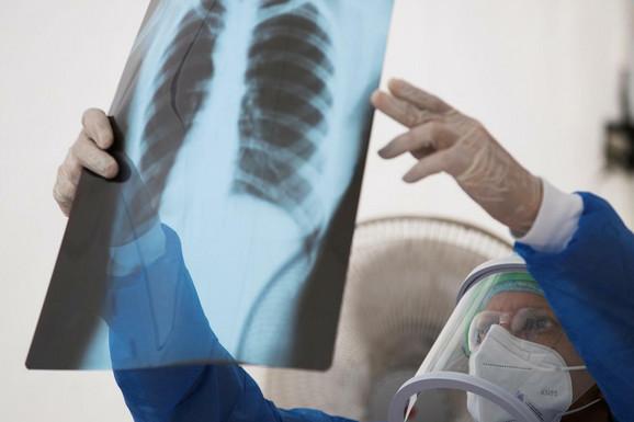 MISLIO DA SA KORONOM MOŽE DA SE IZBORI KOD KUĆE Bivši fudbaler Zvezde imao temperaturu deset dana, otišao u bolnicu - a tamo rekli: Obostrana UPALA PLUĆA!
