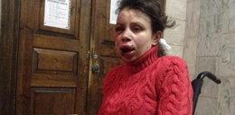 Brutalnie pobito dziennikarkę na Ukrainie!