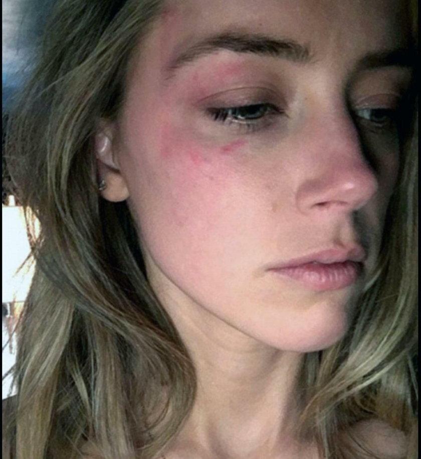 Amber Heard ze śladami przemocy domowej