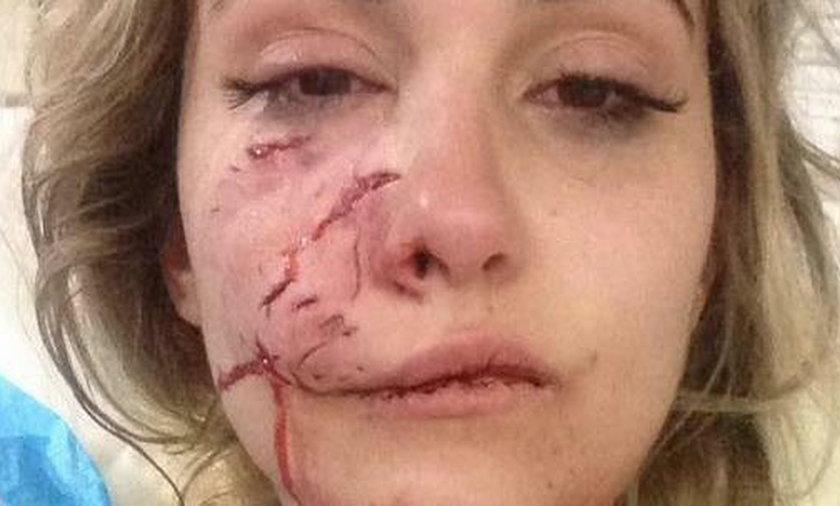Modelka pokazała zdjęcia oszpeconej twarzy. Zaatakował ją pies przyjaciela