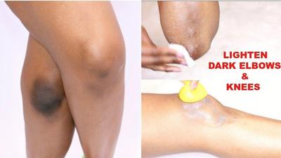 5 façons de se débarrasser naturellement des coudes et des genoux sombres