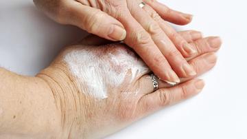fájdalom a térdízületeken kenőcsöknél a csípőfájdalom és mit kell tenni