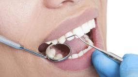 Robot dentysta wykonał skomplikowany zabieg na ochotniczce