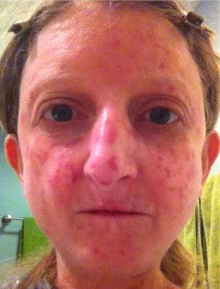 Cierpiąca na twardzinę skóry Lisa Goodman-Helfand