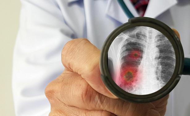 Według informacji zamieszczonych przez chińskie portale internetowe zakażenia nowym wirusem wywołującym zapalenie płuc potwierdzono w Chinach u 8 149 osób, a kolejne 92 przypadki wykryto za granicą. Z powodu zarażenia zmarło jak dotąd w Chinach 171 osób. Nie pojawiły się doniesienia o zgonach w innych krajach.
