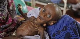 Straszne. Zmarło 125 tys. dzieci. Z głodu