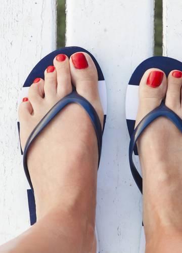 eladó megbízható minőség kiváló minőségű Durva problémákat okozhat a flip-flop papucs viselése - Ezért ne ...