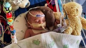Facebook zablokował zdjęcie dziecka z wadą serca. Treść porównał do zombie oraz wampirów