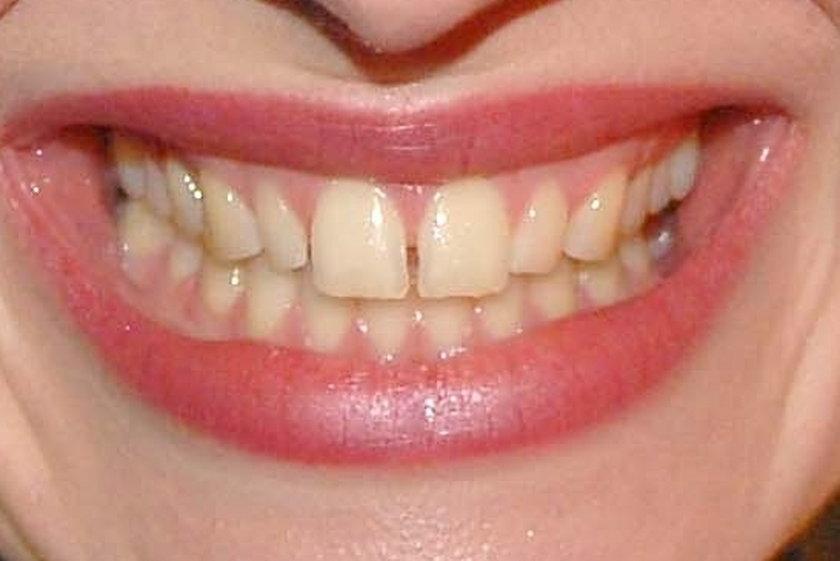 Zęby Mai Hirsch
