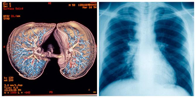 Snimak pluća skenerom i rendgenom