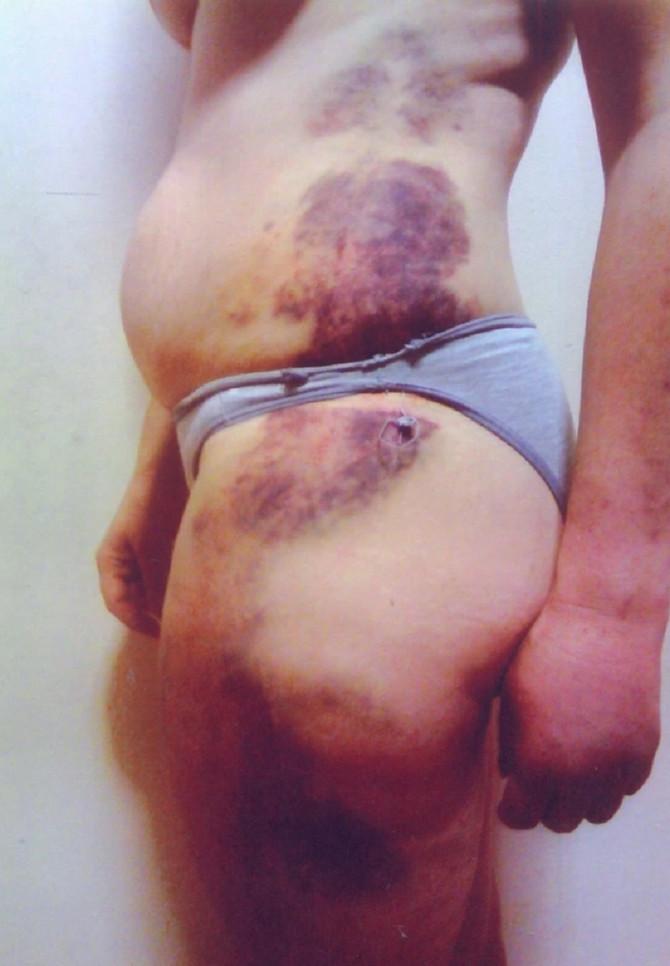 Fudbaler Ris Tompson tukao devojku, nanevši joj teške povrede: detalji nasilja izašli u javnost