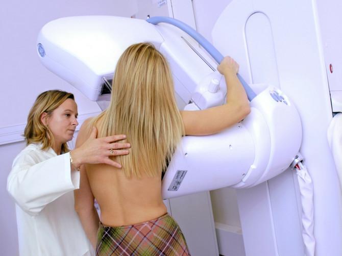 Pre odlaska na mamografiju raspitajte se o kvalitetu aparata i iskustvu radiologa
