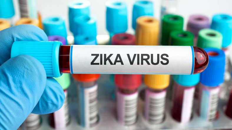 Wirus Zika