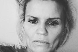 """""""VIŠE NE LIČIM NA SEBE"""" Pevačica zaražena, podelila jezive fotografije na kojim trpi bolove i MOLI ZA POMOĆ"""