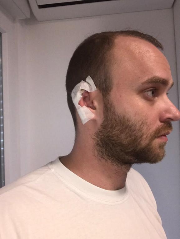 Danijel Alibabić nakon napada