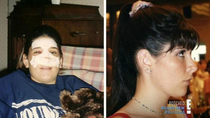 Keti nakon prve operacije