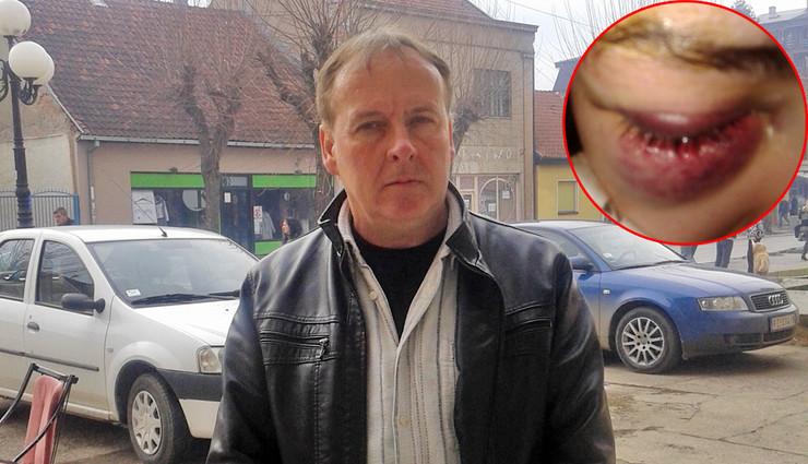 otac Milos Radoicic pretucena devojcica povrede foto B Bojovic privatni album