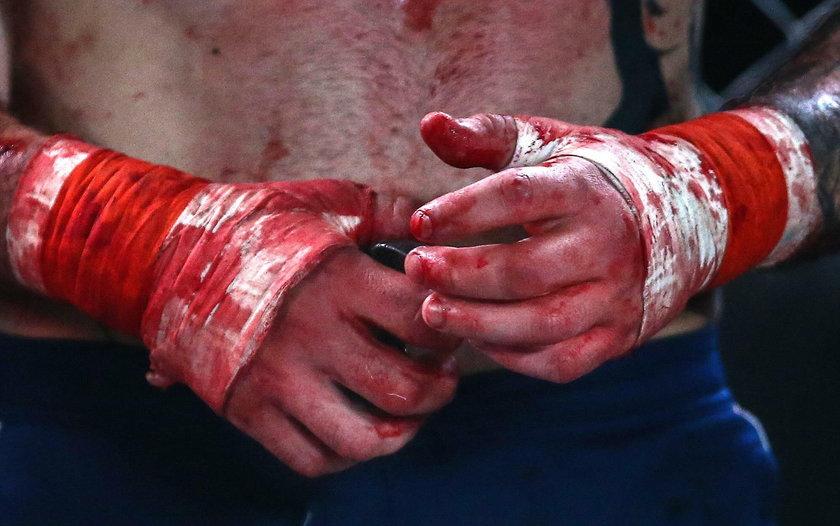 Krwawa walka na gołe pięści w Rosji. Twarze zawodników przypominały miazgę