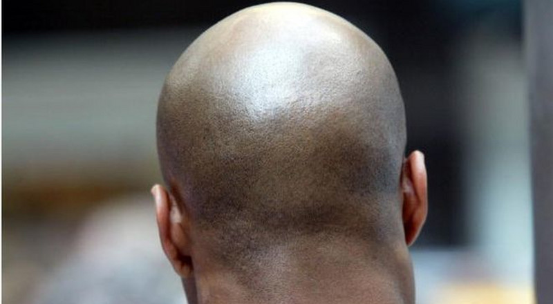 4 home remedies to treat baldness