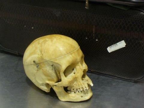 5dccaad13dda9 Do odkrycia doszło w trakcie odprawy. Walizka została poddana rutynowej  kontroli, podczas której prześwietlono ją aparatem rentgenowskim.