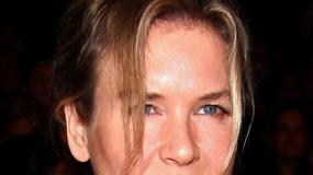 Co się dzieje z twarzą Renee Zellweger?