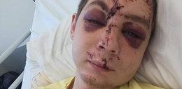 Kierowca mercedesa zmasakrował mu twarz. Kacper prosi o pomoc w odnalezieniu sprawcy